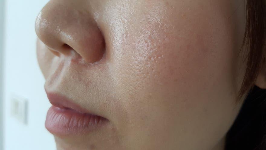 Quel masque pour resserrer les pores ?